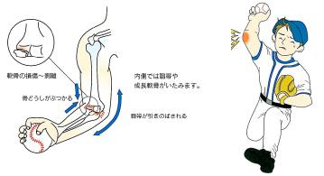 図1. 野球肩・野球肘(日本手の外科学会・エーザイ株式会社のパンフレットより)